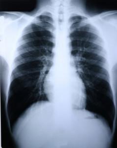 Medical writing image